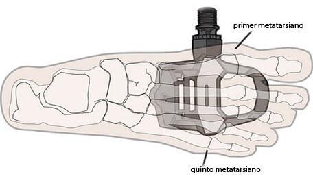Toma como referencia el primer y quinto metatarso del pie. Imagen: bicilink