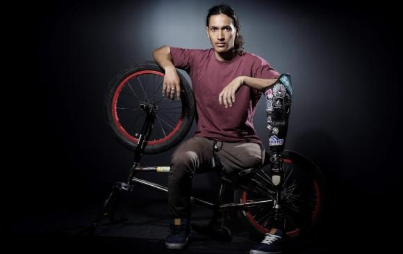 Julian Molina le falta una pierna